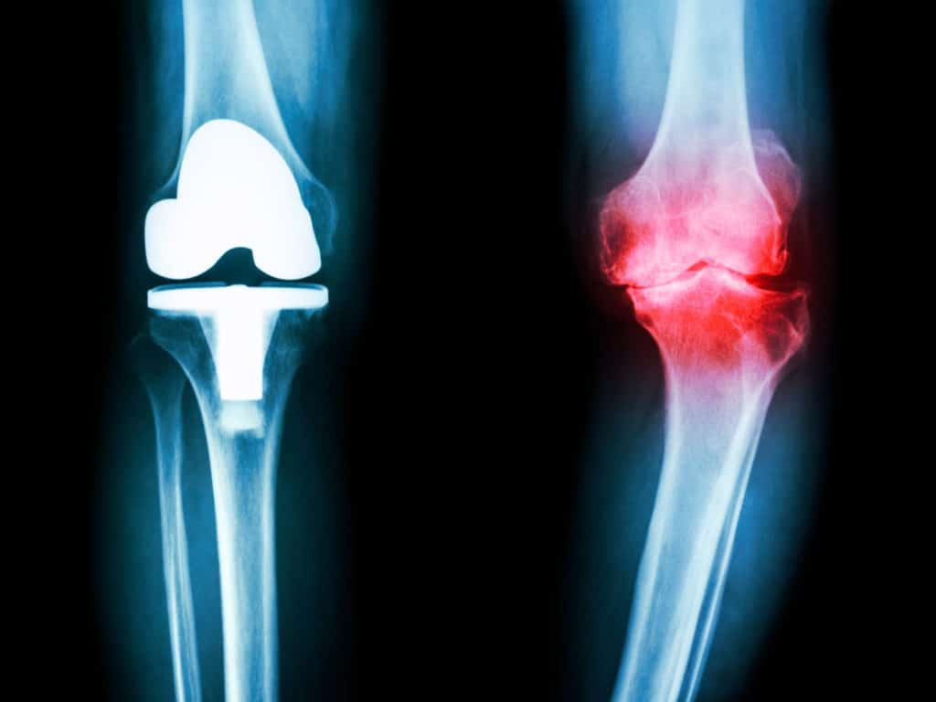 Dr Hawker researches osteoarthritis (OA) outcomes. A predominant theme of her work is the appropriate use of hip and knee joint replacement surgery for OA.
