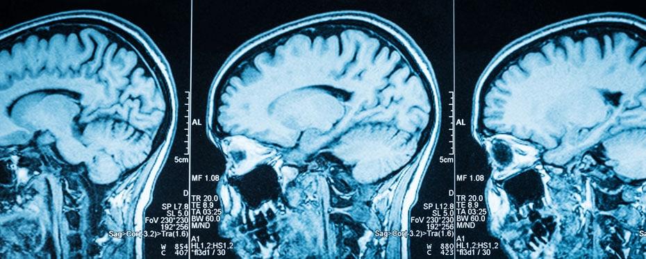 traumatic brain injury Dr Lynn Ann Barker Traumatic Brain Injury