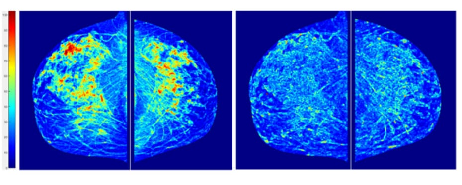 predicting cancer risk bin zheng research outreach