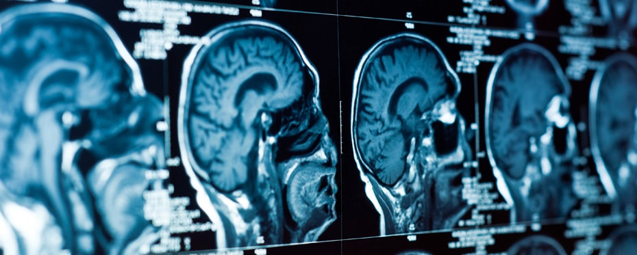 Light therapy improves cognitive function after traumatic brain injury