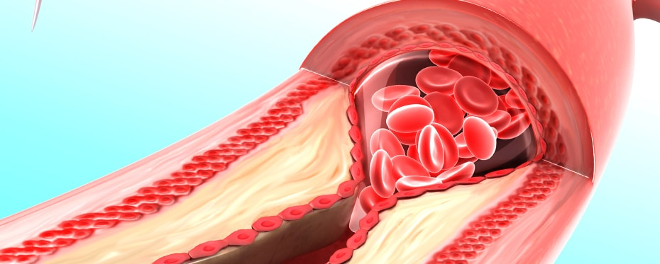 A potential new tool for cardiovascular disease prevention