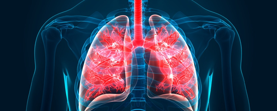 Developing a novel inhaled therapeutic for the treatment of bronchiolitis obliterans syndrome