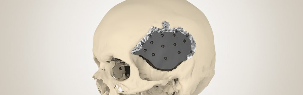 Cranial implant after skull surgery