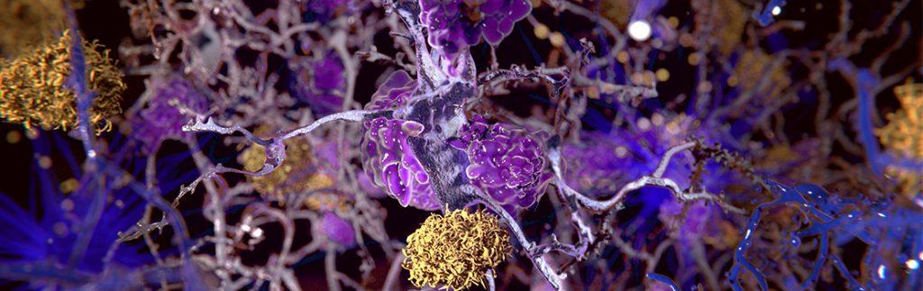 Dr Niesman studies mutant tyrosinase in feline brain cells.