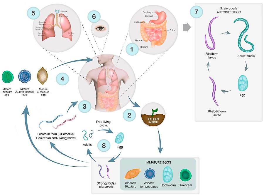 helmintusok strongyloidosis)