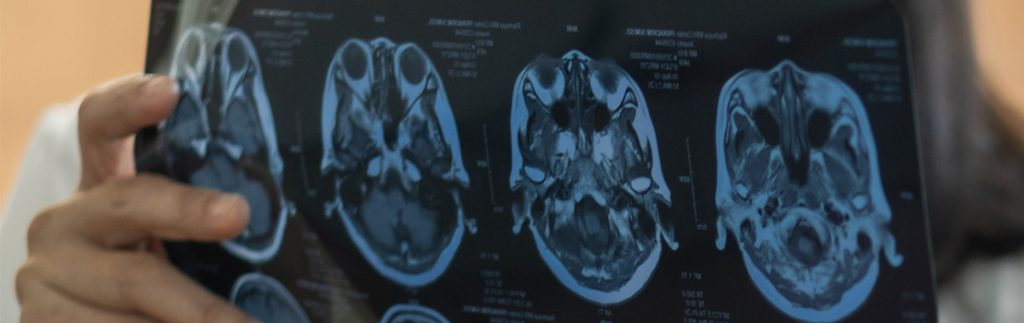 A doctor looks at brain scan results