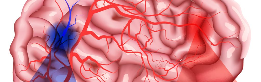 Due to a stroke, the brain tissue no longer receives oxygen.